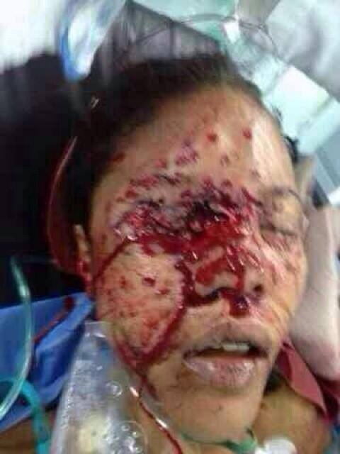 Geraldine Moreno, Valencia, Carabobo, Venezuela. Shot in the eye by the military for peacefully protesting on February 20, 2014.